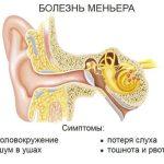 Болезнь Меньера – причины и признаки заболевания