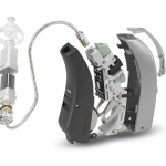 Класифікація і схема слухового апарату